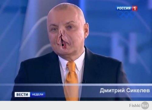Украинская оппозиция уклоняется от выполнения соглашений, подписанных с Януковичем, - МИД РФ - Цензор.НЕТ 9634